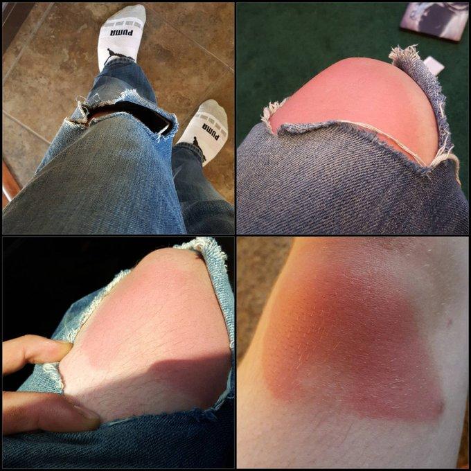 10 наглядных примеров, почему рваные джинсы жарким летом — не всегда круто